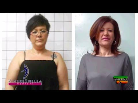 Se è possibile perdere il peso con vibrotone
