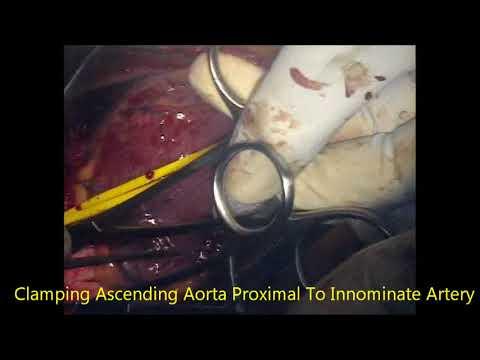 Rolul inhibitorilor în tratamentul hipertensiunii arteriale