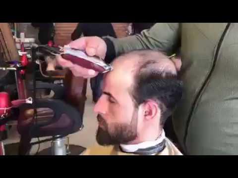 Lozione di capelli migliorin da una perdita di capelli