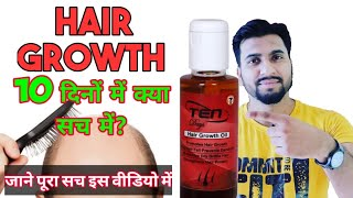 10 Days Hair Oil - An Ayurvedic Oil for Hair Growth ( Review )   Classy Indian