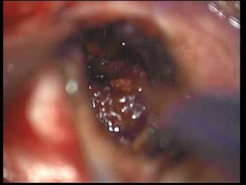 Cavernous Brain Malformation - Resection