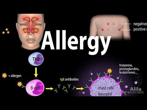 Allergy - Mechanism, Symptoms, Risk factors, Diagnosis, Treatment and Prevention, Animation