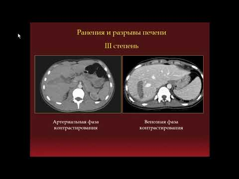 Какими лекарствами лечить хронического гепатита