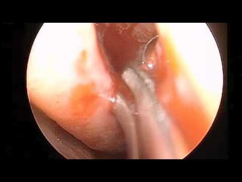 Endoskopowe usunięcie komórek sitowych z założeniem implantu