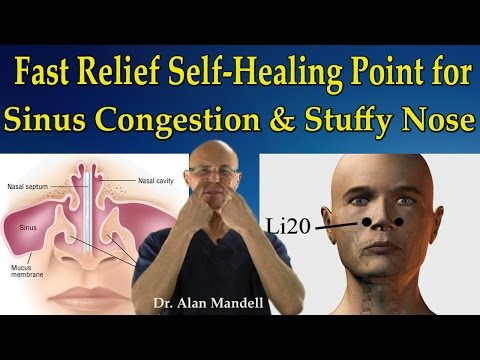 Video Fast Relief Self-Healing Point for Sinus Congestion, Stuffy Nose, Headaches - Dr Mandell