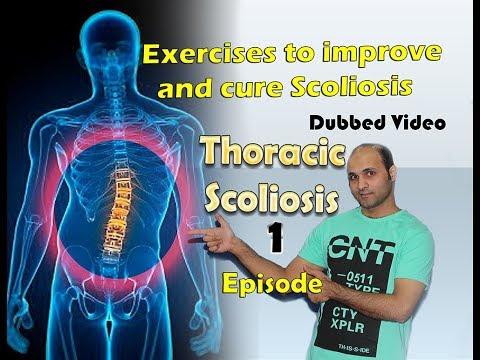 Spina dorsale di esercizio scoliosis per bambini di video