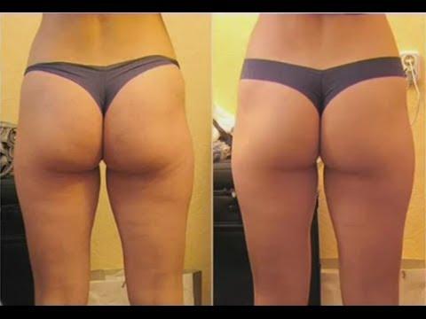 Umangkop Fitness Slimming