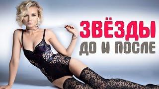 ТОП-10 российских звезд, которые сильно похудели #ПохудевшиеЗвезды 1