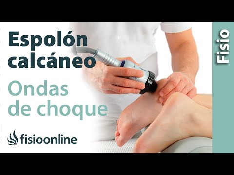 Condrosis remedios populares de tratamiento posterior