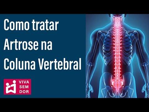 Tratamentul chirurgical al artrozei genunchiului cu