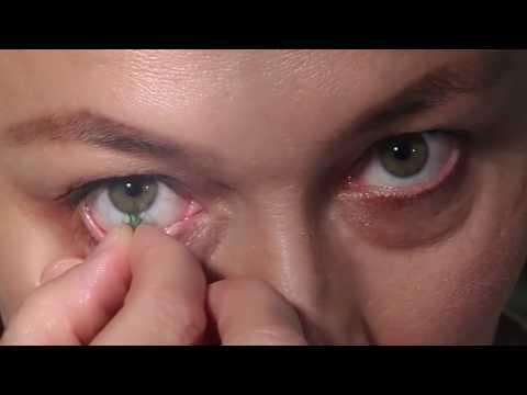 Йога для улучшения зрения близорукость