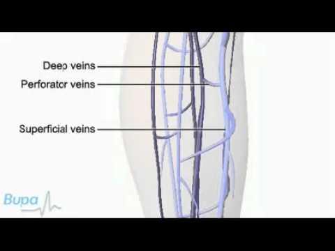 Varices บ่งชี้สำหรับการผ่าตัดคลอด