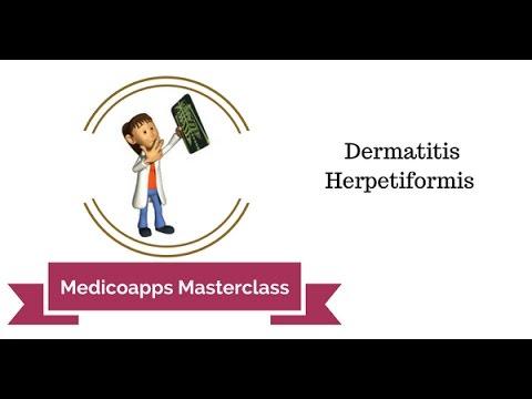 La dermatite di atopic può essere il massaggio fatto