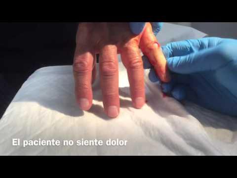 Fungoterbin el hongo de las uñas las revocaciones