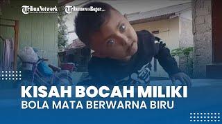 Kisah Bocah Berbola Mata Biru di Bogor, sang Ibu: Banyak yang Tanya Ini Anak Matanya Dikasih Lensa?