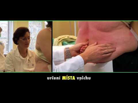 Cvičení pro adenomy prostaty u mužů