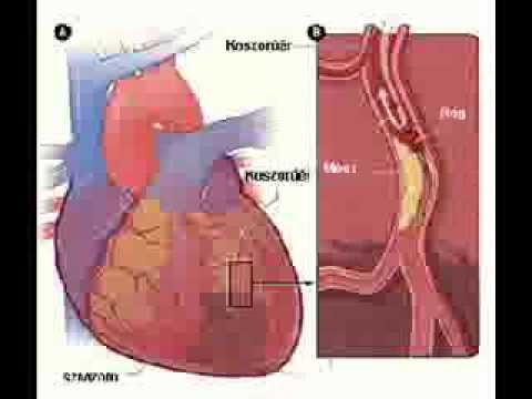 Miért ember szenved magas vérnyomásban