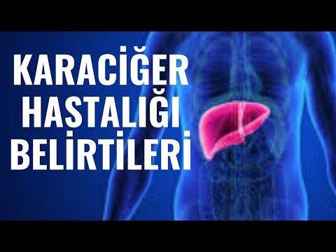 Karaciğer hastalıIğı, belirtileri, nedenleri?