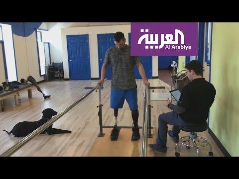 العرب اليوم - شاهد: تطوير جهاز جديد يخفف آلام ذوي الأطراف المبتورة