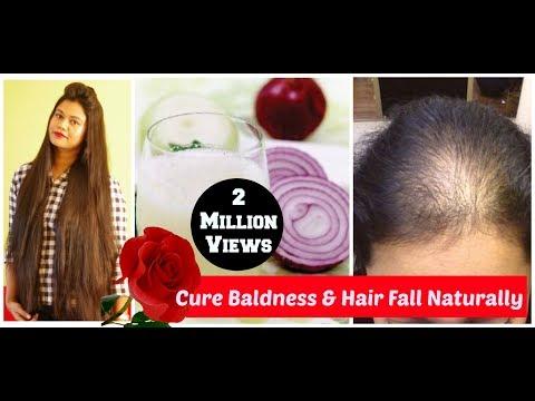 Łojotok skóry głowy wypadanie włosów zdjęcie