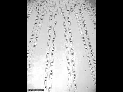Giardia laban sa mga bata