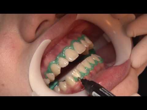Clareamento dental em consultório com Whiteness HP Blue (Passo a Passo)
