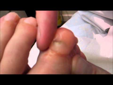 Le traitement du microorganisme végétal des pieds la forme négligée