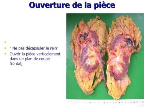 Prostate atrophische Prozess