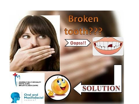 Broken Tooth Restoration: Dr Arvind Agarwal M.D.S (oral and maxillofacial surgeon)