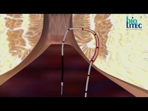 Tabletki hemoroidów i ból