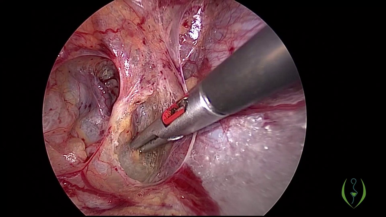 Laparoscopic myomectomy of large and oddly positioned myomas with uterine artery ligation at origin