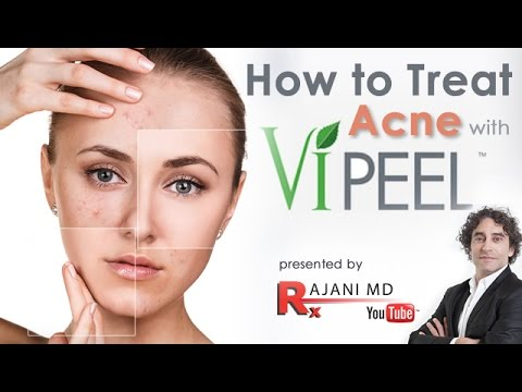 How to Treat Acne with the Vi Peel-Dr Rajani
