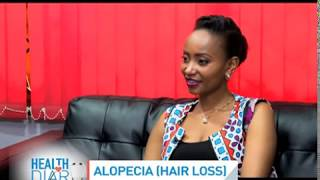 Alopecia: Hair Loss Causes And Remedies || Health Diary