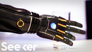 Ingenieros crean nuevo brazo biónico que puede crecer contigo