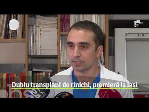 Tratamentul pentru tratamentul varicozei
