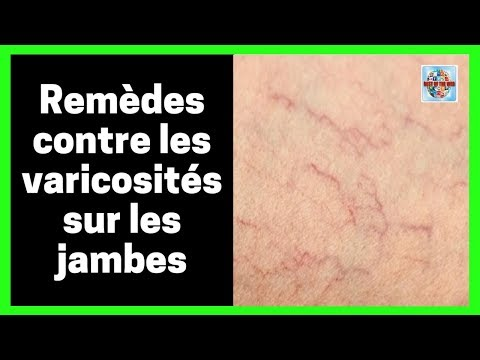 Le traitement à la thrombose des veines superficielles