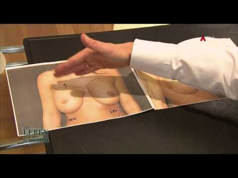 Die Handkorrektion der Brust