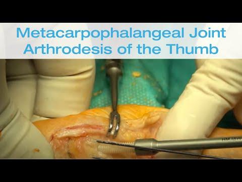 Gelatină pentru durere în articulația șoldului