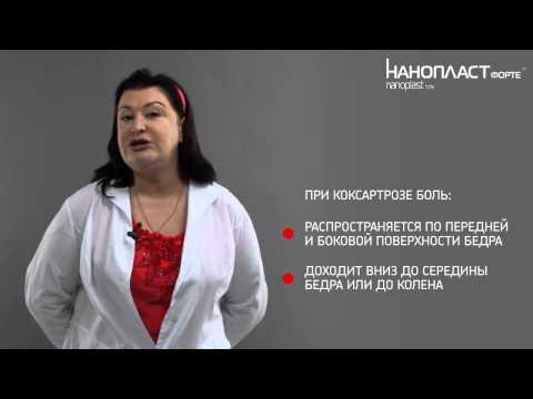 Коксартроз: лечение артроза тазобедренного сустава с НАНОПЛАСТ форте