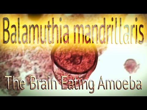 Dugo antigens bulating parasito