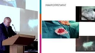 Грошев И. А. Актуальные вопросы комбинированного лечения рака молочной железы в МГОБ №62 ДЗМ