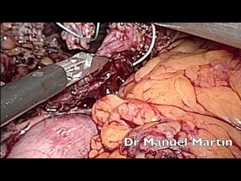 Puede ser la temperatura de dolor en la región cervical