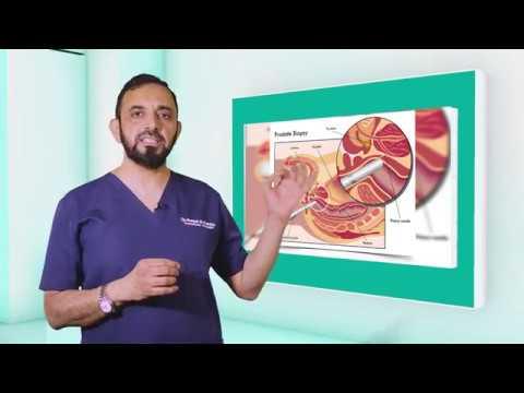 Cancer de prostata psa valores