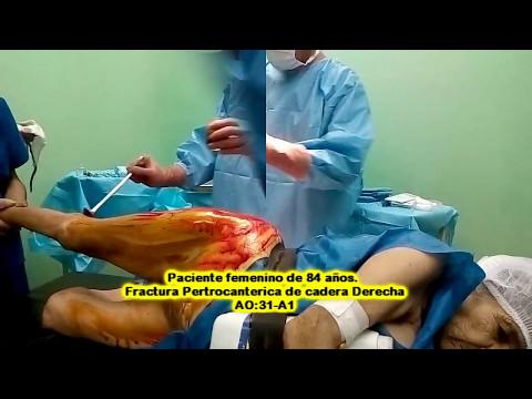 Osteocondrosis aplicación Finalgon