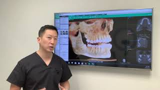 How long is the recovery process after getting your wisdom teeth out?