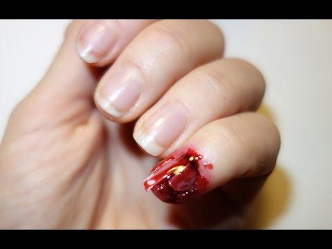 Die moderne Behandlung gribka des Nagels die gestartete Form