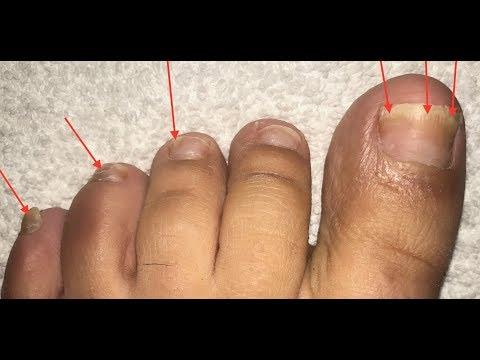 Die Behandlung des absterbenden Nagels