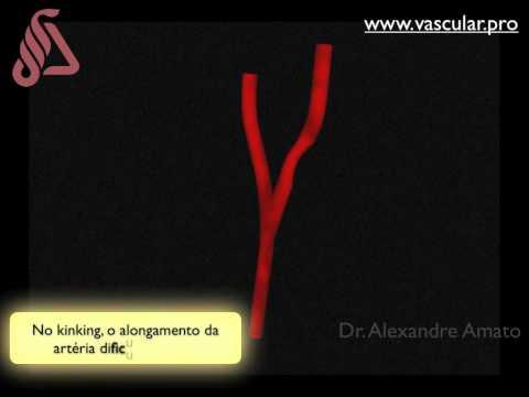 Siccome la trombosi di vene profonde delle estremità più basse è a lungo curata