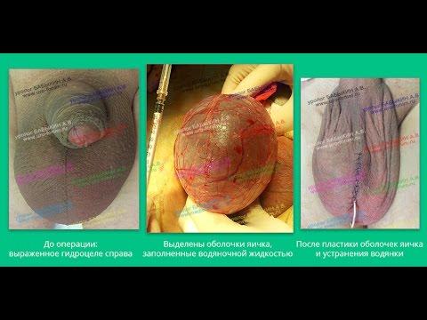 Водянка яичка - операция при гидроцеле