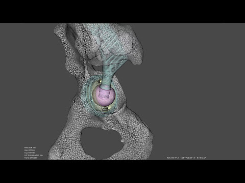 Video Lab Tests Help Create Sex Positions Guide For People With Hip Replacements